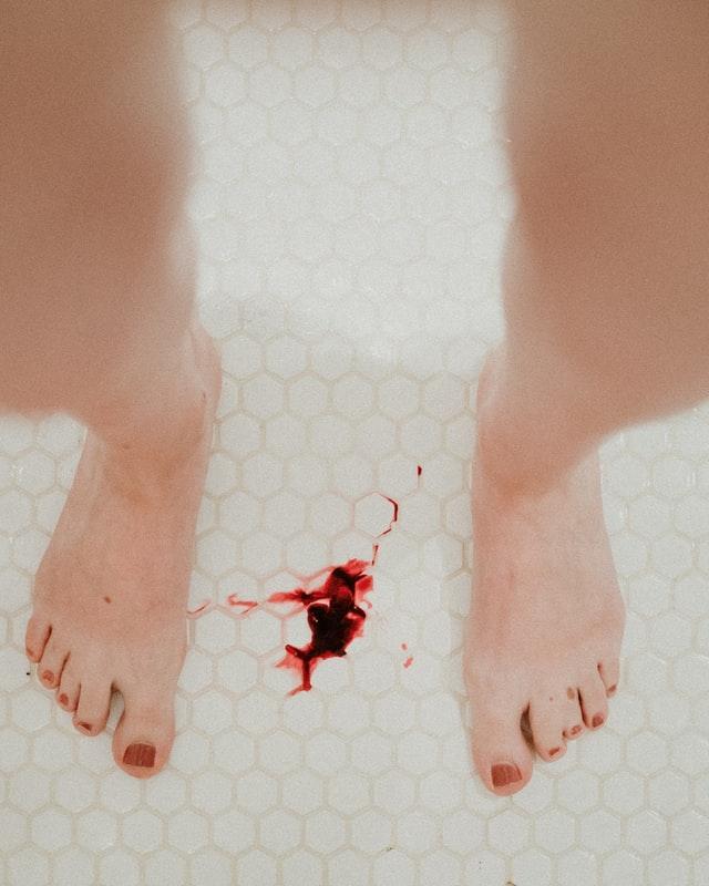Blutungen in den Wecheljahren